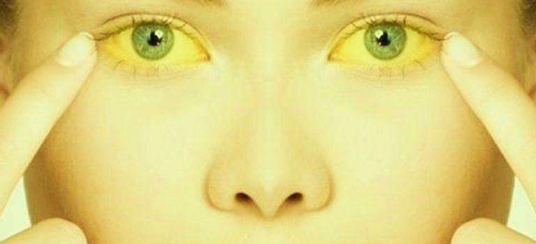 درمان زردی