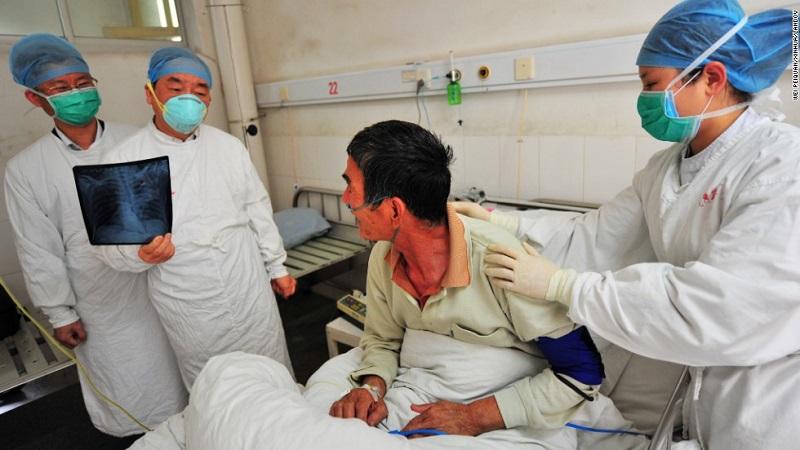 عوارض آنفولانزای مرغی