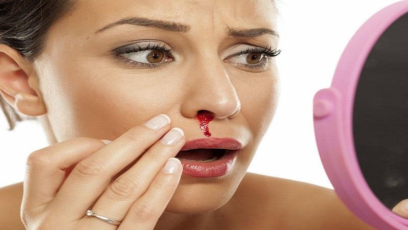 خونریزی بینی چگونه رخ می دهد؟ بررسی علل و نحوه درمان آن