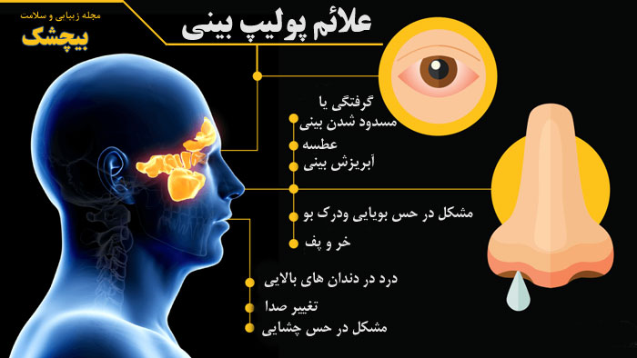 علائم پولیپ بینی