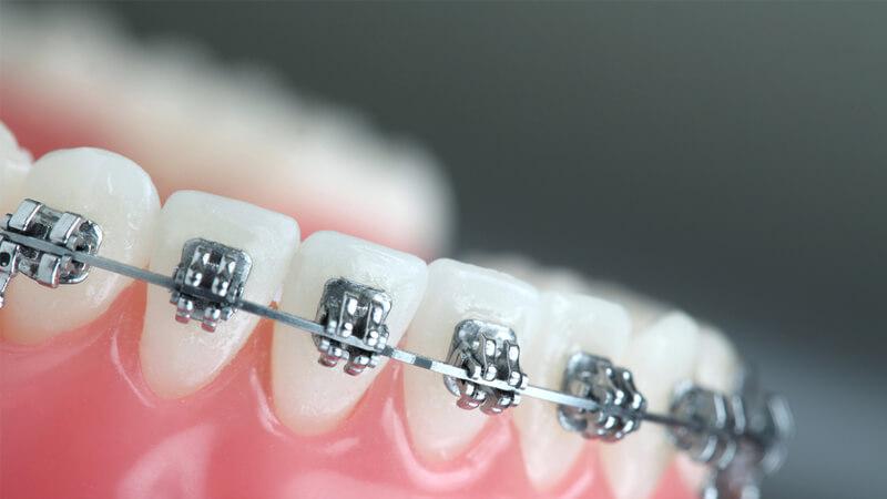 همه چیز در مورد ارتودنسی ، انواع، عملکرد و مراحل ارتودنسی دندان ها
