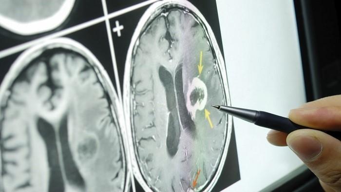 نحوه درمان تومور مغزی