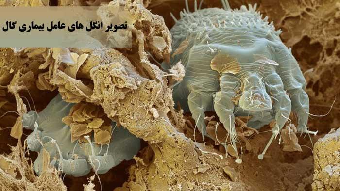 بیماری گال یا جرب چیست ؟
