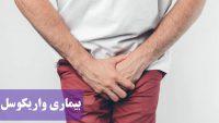 بیماری واریکوسل ؛ علائم ، علت این بیماری، روش های مختلف درمان و هزینه عمل