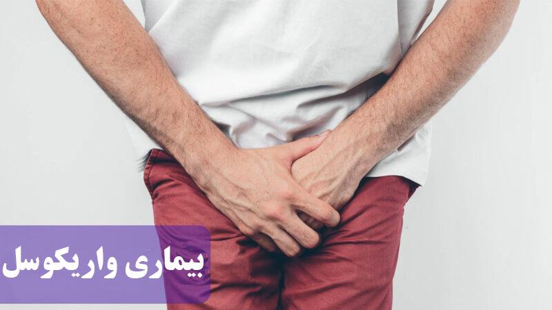 آشنایی با علت، علائم و روش های درمان بیماری واریکوسل یا واریس بیضه