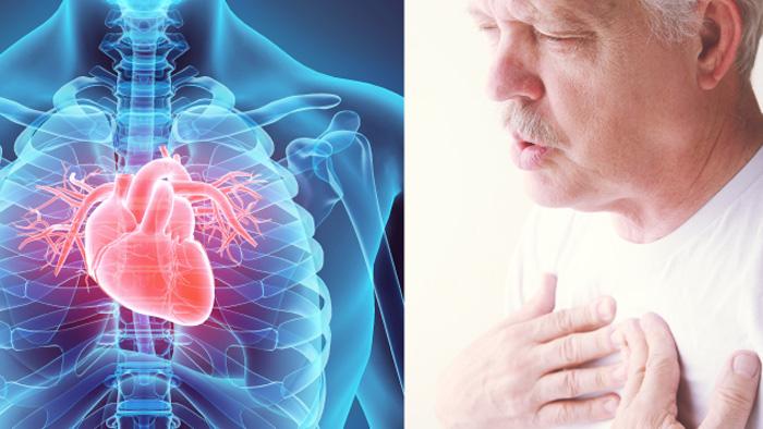 درمان التهاب عضله قلب