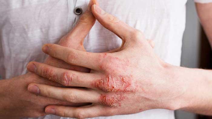 تشخیص آلرژی