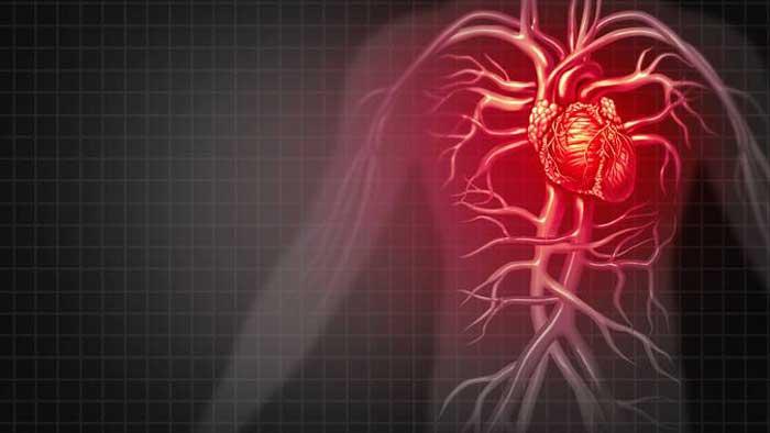 ضربان قلب نامنظم