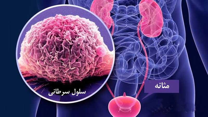 سرطان مثانه ؛ علت ، علائم، روش های پیشگیری و درمان