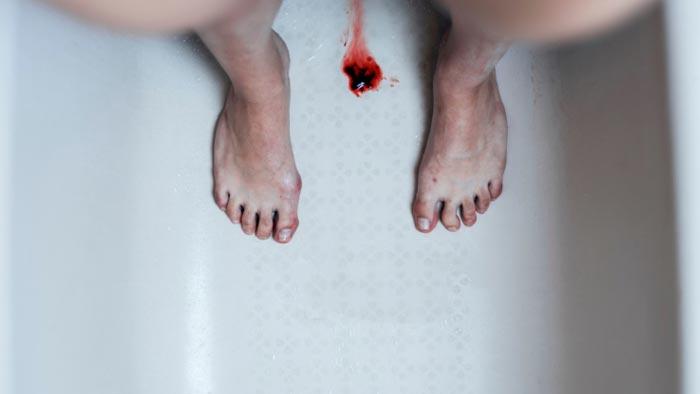 لخته شدن خون در پریودی