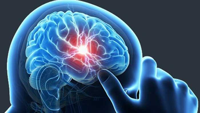 آبسه مغزی چیست؟