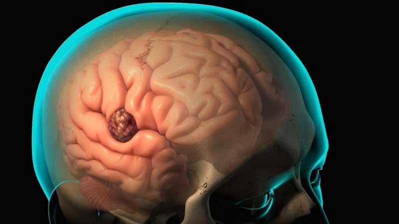 آبسه مغزی ؛ علت ، علائم و روش های درمان
