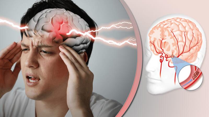 سکته مغزی و علائم آن، درمان و توانبخشی، رژیم غذایی و مراقبت از بیماران