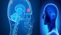 تومور مغزی چیست؟ بررسی علائم و نشانه های آن