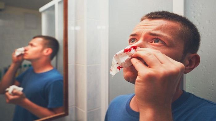 علل ایجاد خونریزی بینی