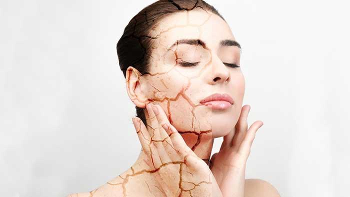 عوامل خشکی پوست