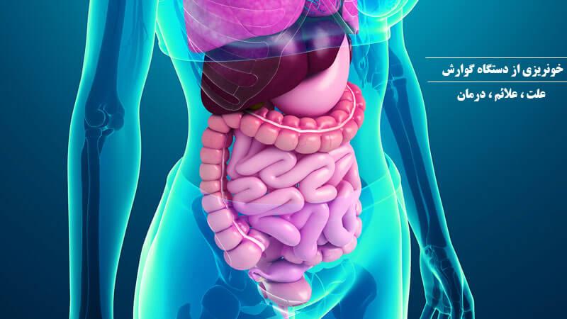 خونریزی دستگاه گوارشی : علت ، علائم و نحوه درمان
