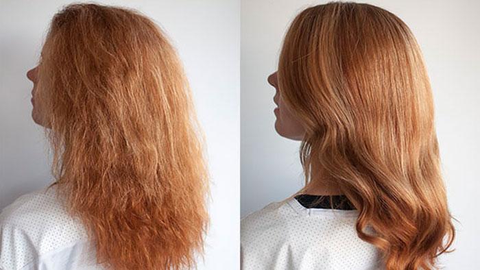 عکس قبل و بعد بوتاکس مو