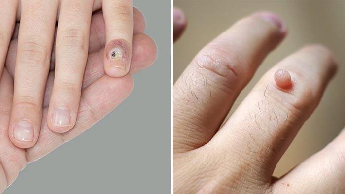 زگیل انگشتان دست