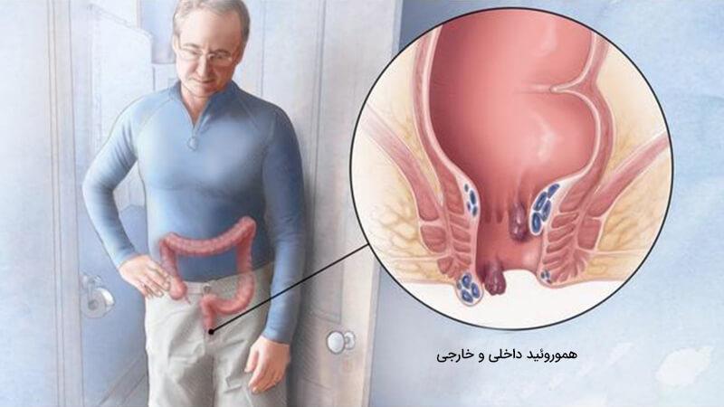 درمان هموروئید یا بواسیر