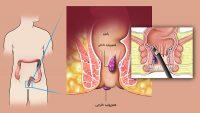 دانستنیهای بیماری هموروئید، نشانه های بیماری، علل، راه های پیشگیری و درمان