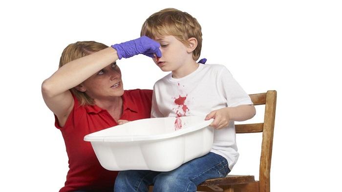 نحوه درمان خونریزی بینی
