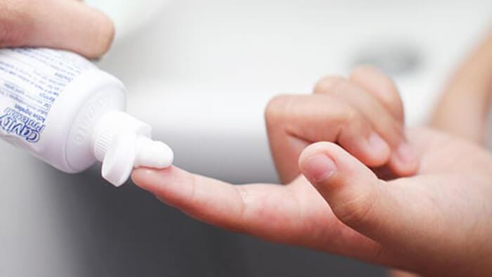 درمان تبخال با خمیر دندان