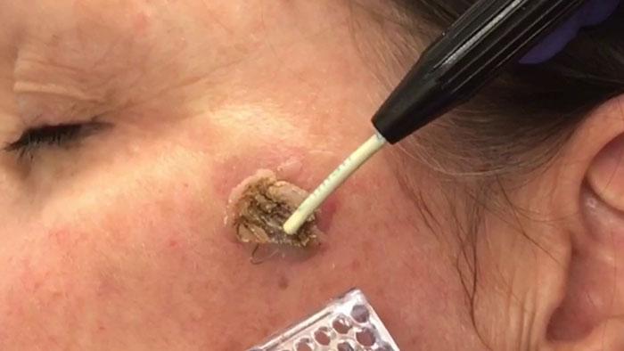 درمان خال پوستی
