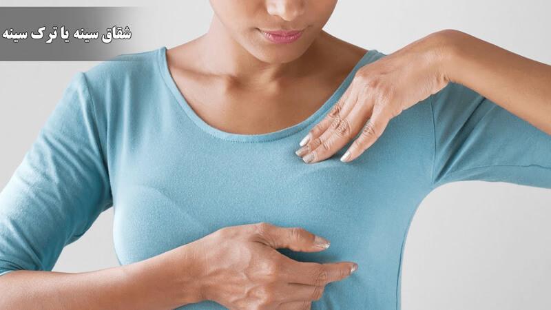 درمان شقاق سینه ؛ از درمان های خانگی و گیاهی تا درمان های پزشکی و دارویی