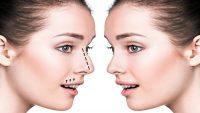 جراحی بینی ، هزینه عمل بینی، عمل زیبایی بینی گوشتی و استخوانی