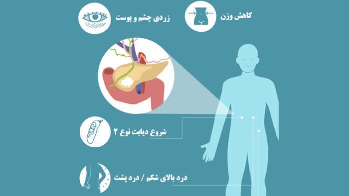 علائم سرطان پانکراس