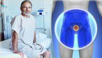 سرطان پروستات : پروستات چیست؟ علائم و درمان این بیماری و راه های پیشگیری از آن