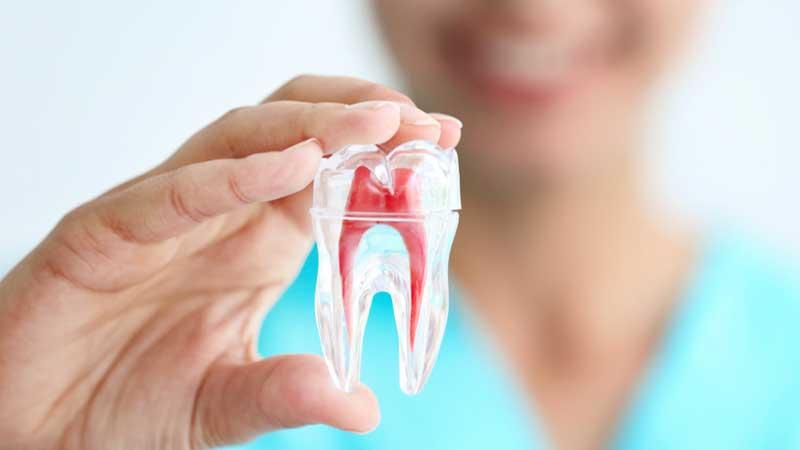 مراحل عصب کشی دندان