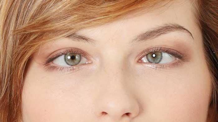 بیماری انحراف چشم