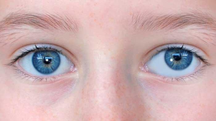 علائم انحراف چشم