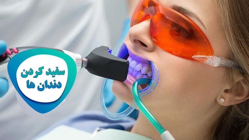 معرفی روش های مختلف سفید کردن دندان ؛ مزایا، معایب و هزینه هر یک