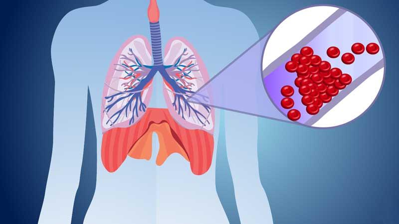 علل ایجاد ترومبوز و آمبولی ، آشنایی با علائم و روش های درمان