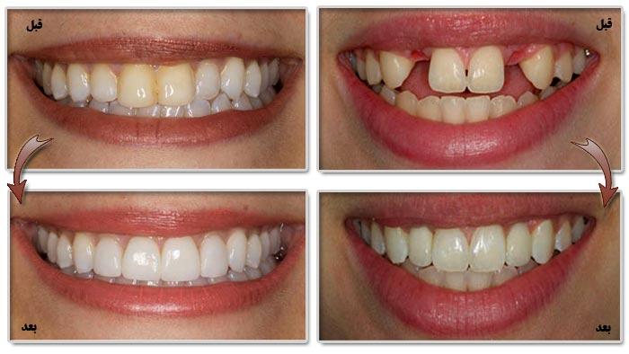 عکس کامپوزیت دندان