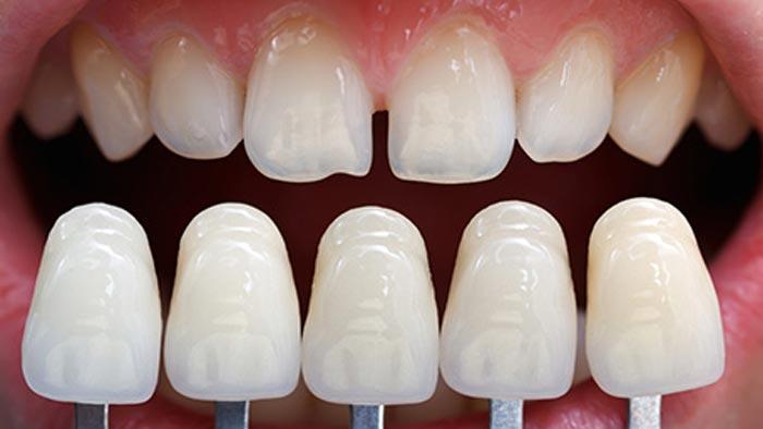 مراحل انجام لمینت دندان