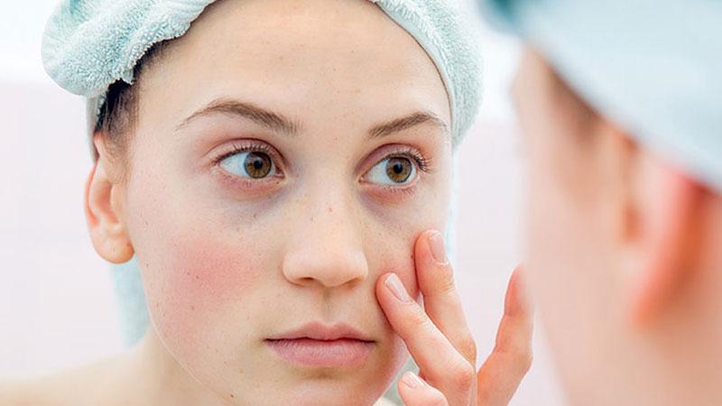 ۲۰ روش طبیعی کاملا موثر و متفاوت برای درمان سیاهی دور چشم