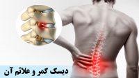 دیسک کمر و علائم آن چیست ؟ روش های درمان این درد در ناحیه کمر