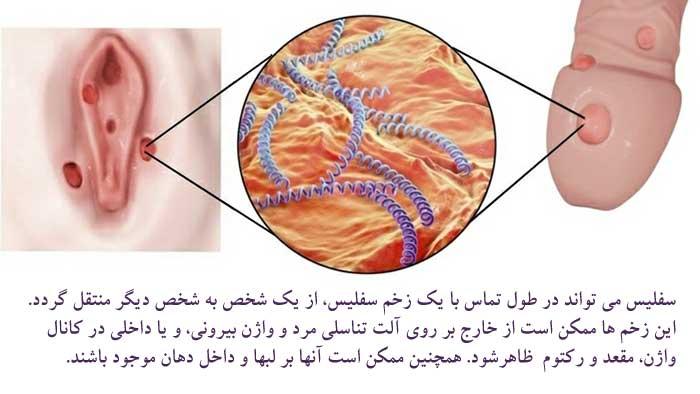 بیماری سیفلیس چیست؟