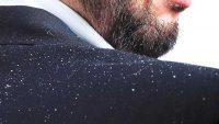 چه عاملی باعث شوره سر می شود؟ معرفی راهکارهای درمان شوره