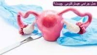 عمل جراحی هیسترکتومی چیست؟ خطرات و مراقبت های بعد از عمل