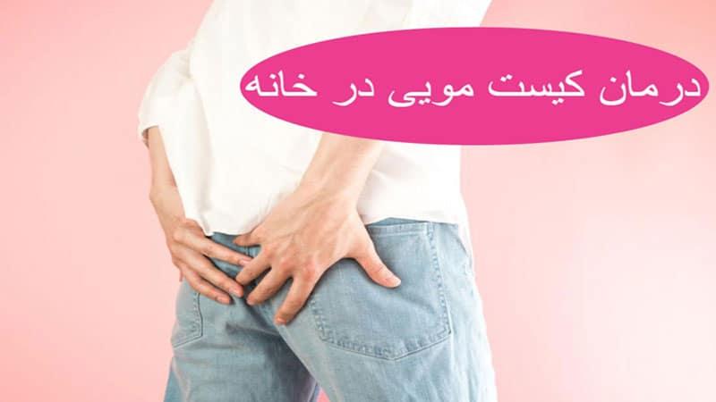 درمان خانگی کیست مویی