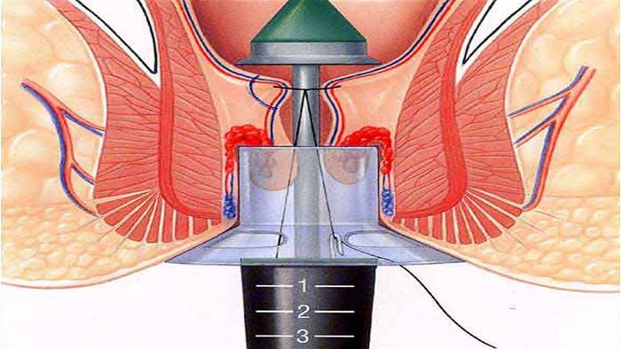 درمان به روش استاپلر