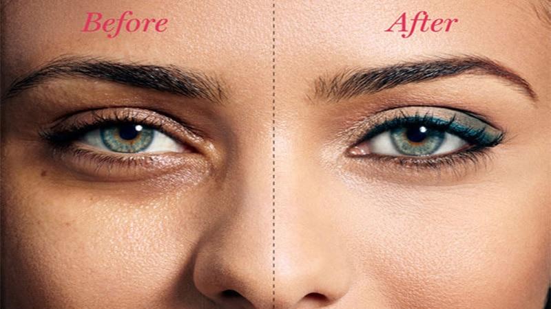 16 روش برای خلاص شدن یا درمان پف زیر چشم در خانه
