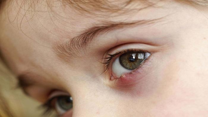 درمان گل مژه چشم کودکان