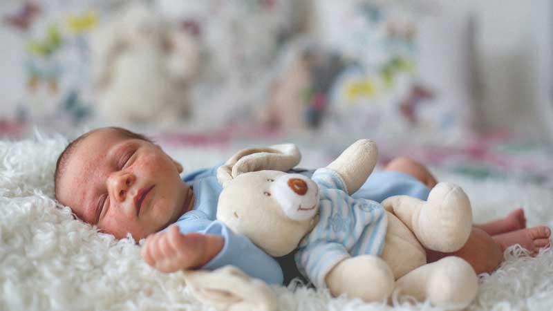 شایعترین علل ایجاد راش پوستی در کودکان چیست؟