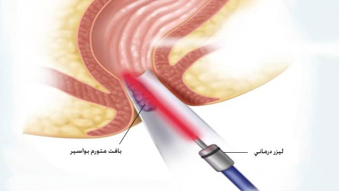 هزینه جراحی هموروئید با لیزر